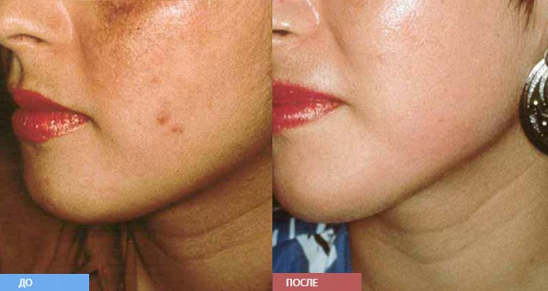 микрошлифовка лица фото до и после