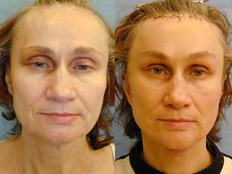 Швы после пластической операции лица