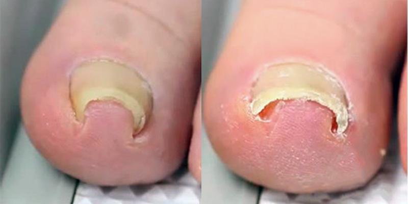 Как лечить грибок на пальцах в народных средствах