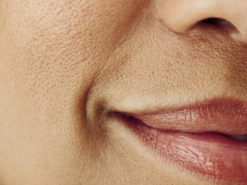 фото расширенные поры на лице