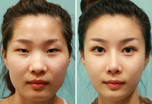 блефаропластика азиатских глаз до и после фото