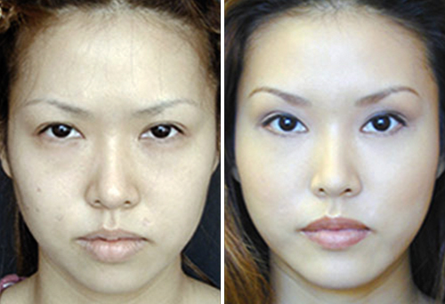 фото азиатских глаз до и после операции