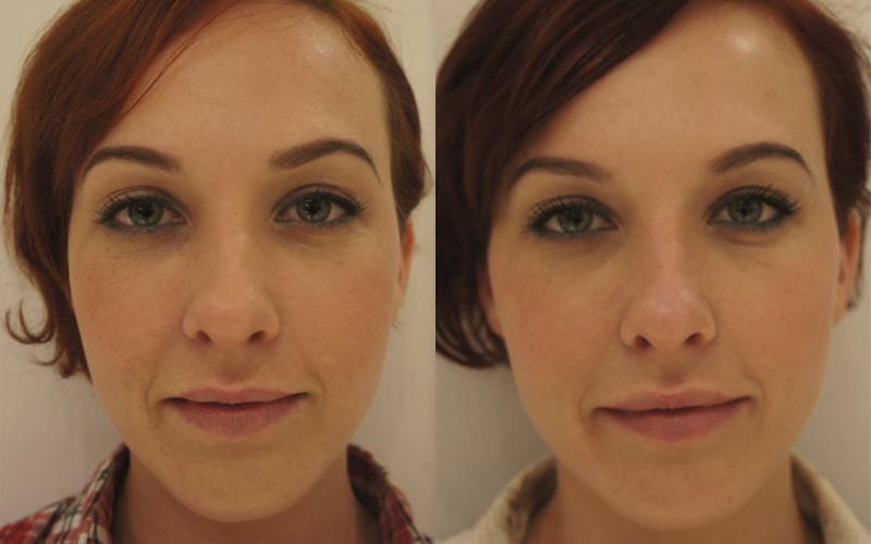 коррекция скул. фото до и после