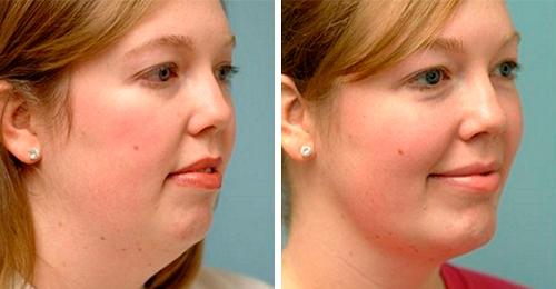 Как убрать «второй» подбородок и щеки: безоперационные и хирургические методики