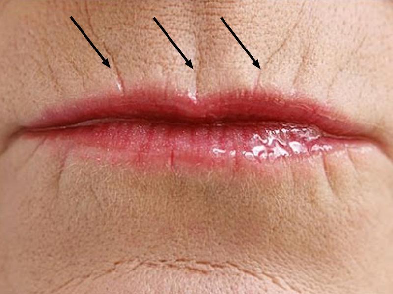 Морщины около рта как избавиться