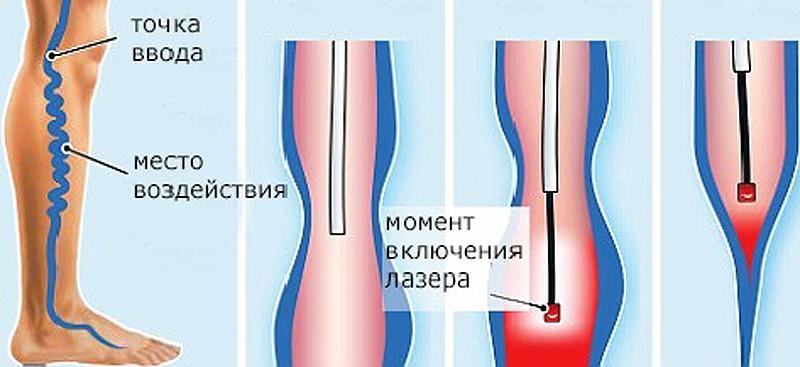 Варикоз лечение лазером