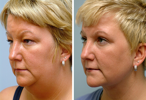 мезотерапия второго подбородка фото до и после