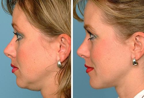 домашние методы подтяжки кожи после похудения