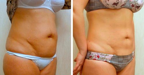убрать жир зоны галифе
