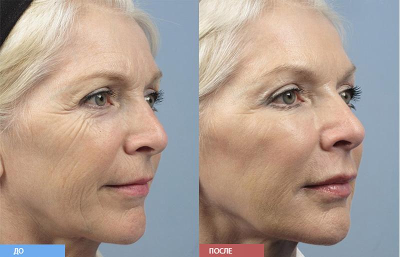 мезоботокс фото до и после