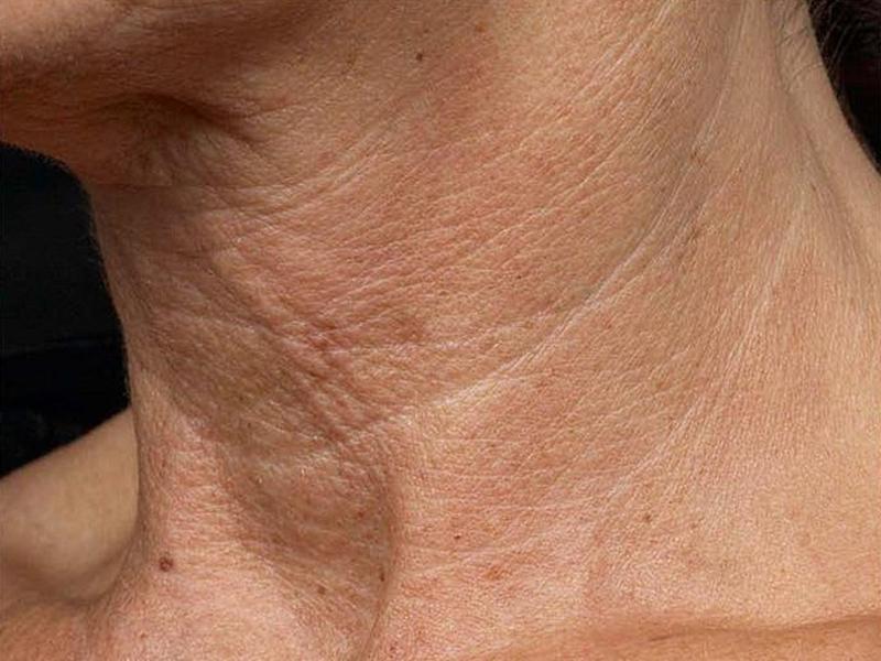 как убрать морщины на шее и декольте
