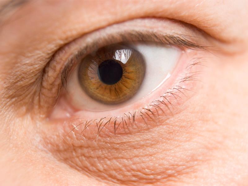Как омолодить вокруг глаз в домашних условиях