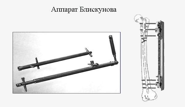 Удлинение ног аппаратом Блискунова