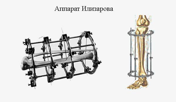 Удлинение ног аппаратом Илизарова