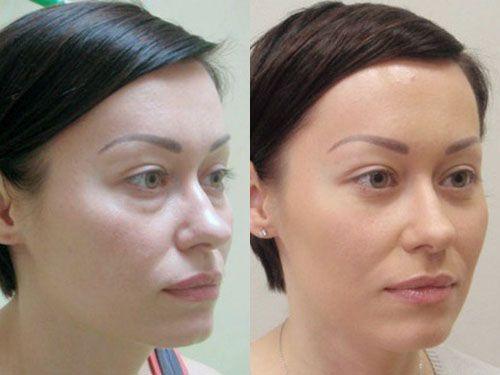 Маска для подтягивания кожи лица шеи
