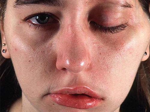 аллергия после ротавирусной инфекции