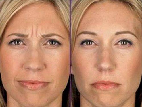 фото диспорт до и после