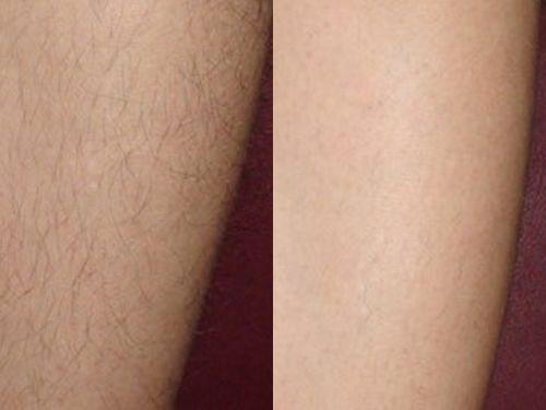 электроэпиляция до и после фото