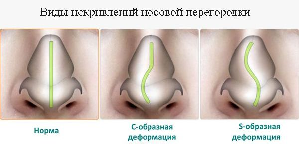 Септопластика носа в клинике EtoLor, фото-1