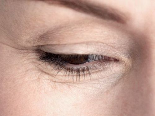 Как убрать морщины под глазами косметология