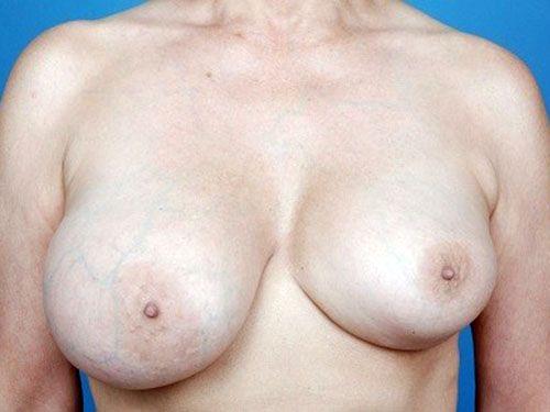 Окружность головы ребенка меньше окружности груди
