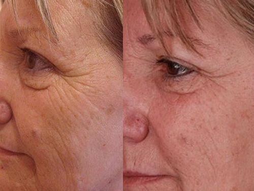 коллагенарий до и после фото