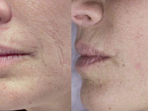 Лазерная наноперфорация лица фото до и после