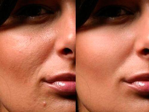 чистка лица картинки