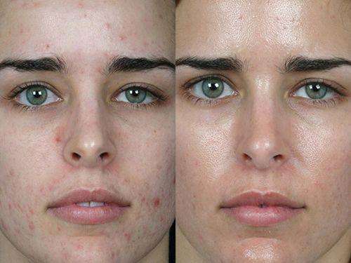 Картинки по запросу химическая чистка лица