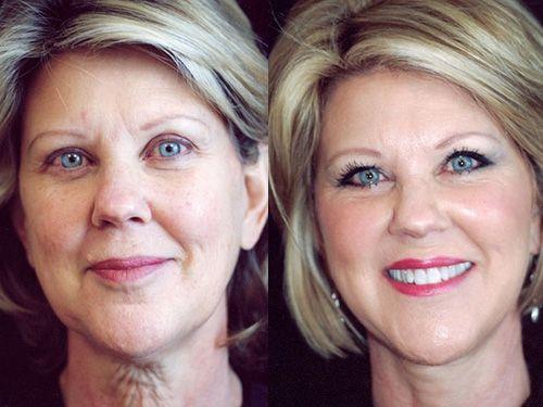 Мезонити для лица фото до и после проведения процедуры