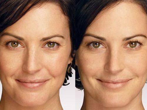 мезотерапия до и после фото