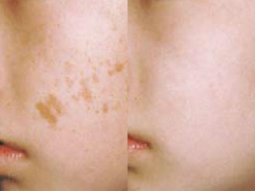 Средства для удаления пигментных пятен на лице