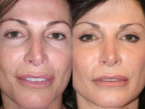 плазмолифтинг лица до и после фото