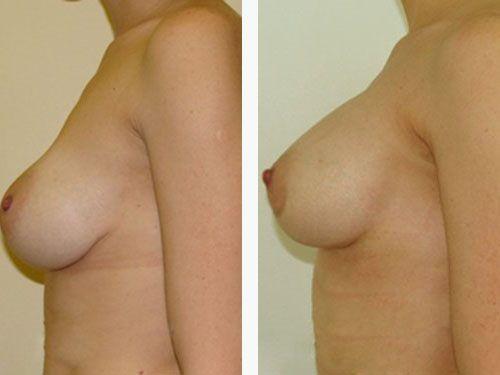 дренаж после увеличения грудины