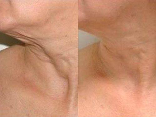 Результаты rf-лифтинга фото до и после