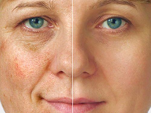 Пигментные пятна на лице после травмы