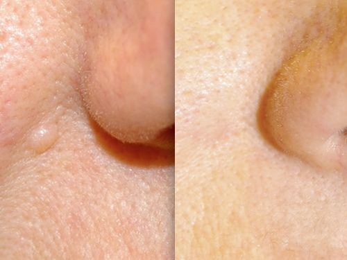 Лечение бородавок в харькове жидким азотом