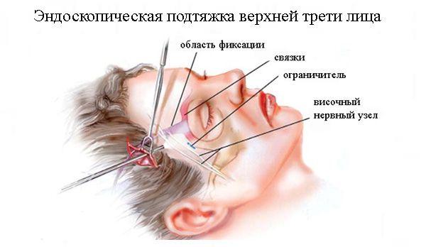Эндоскопическая подтяжка верхней трети лица