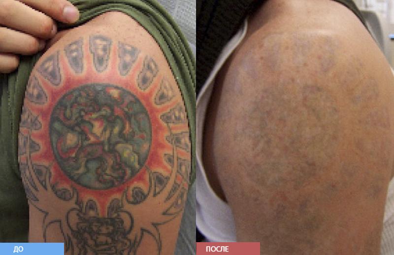 Удаление тату лазером до и после Отзывы об удалении тату