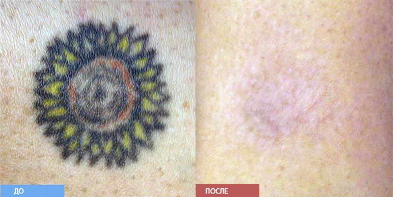 Лазерное удаление татуажа  Отзывы покупателей