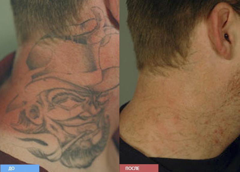 лазерное удаление татуировок | форум Woman.ru