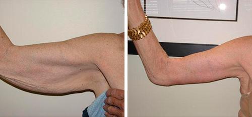 Операция Для Похудения Рук. Липосакция плеч и рук