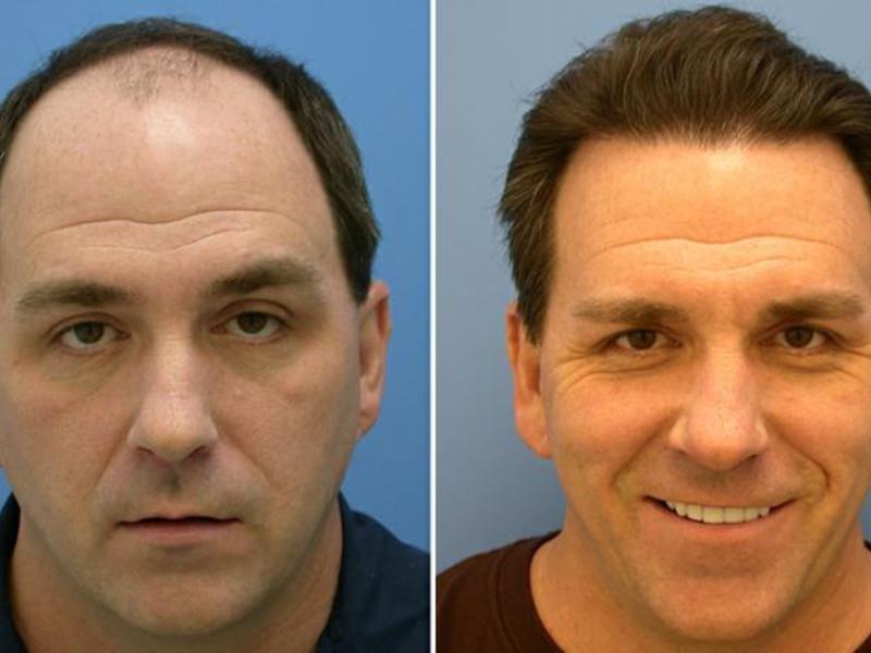 снова пост фото до и после пересадки волос слоя перистых облаков