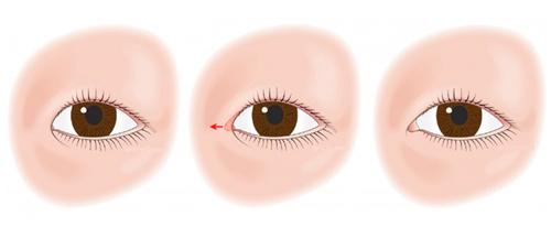 Проведение операции кантопластики