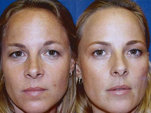 Фото до и после уколов Ксеомина