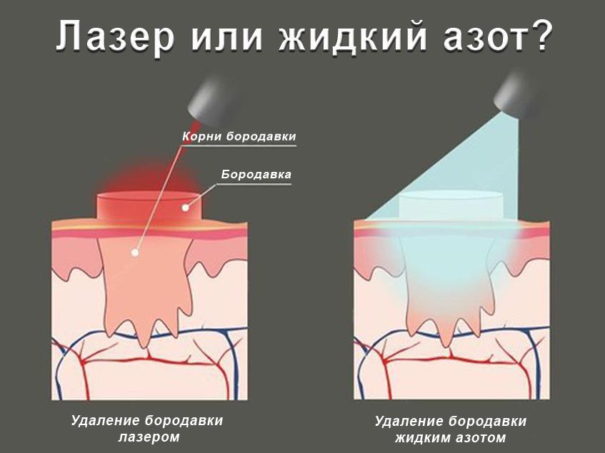 удаление подошвенных бородавок лазером отзывы