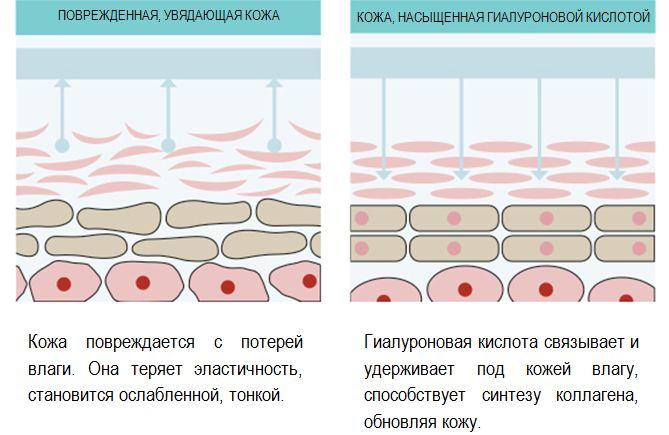 Механизм действия гиалуроновой кислоты