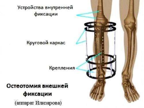 aparat penis ilizarov