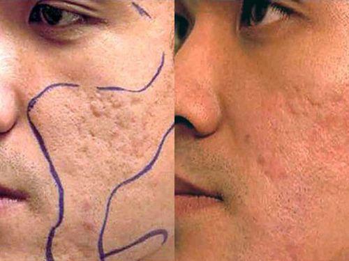 Znalezione obrazy dla zapytania: Дермабразия лица – что это такое?
