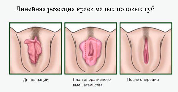Вагина с большими половыми губами купить